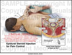 epidural steroid injections and erection picture 6