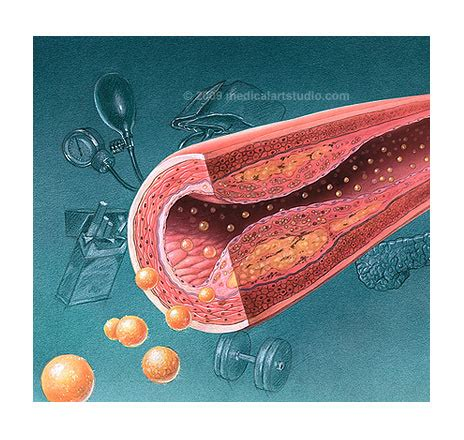 atenolol hypothyroid picture 7