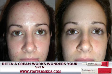 does repivate cream work on acne picture 1