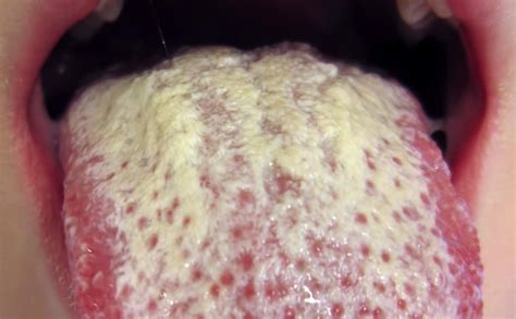 how long to cleanse yeast from the body picture 5