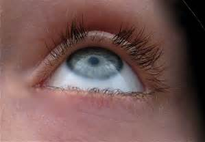loss of eyelashes can be caused by picture 2