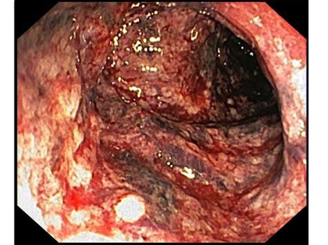 ischemic colon picture 3
