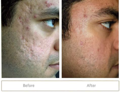 fraxel laser for acne scarring encino picture 6