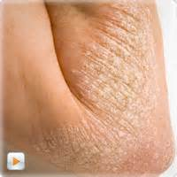 yeast infection skin problems picture 2