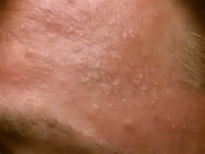 stretch skin shows white pimples picture 6