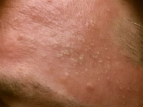 is herpes typically a cluster and medhelp picture 4