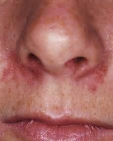 pediatric skin rashes nose blisters picture 2
