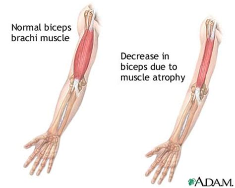 Muscle dieases picture 3