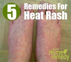 natural remedies to get rid of drool rash picture 10