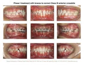 braces on interior teeth picture 13