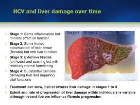 hep c and liver damage after treatment picture 5