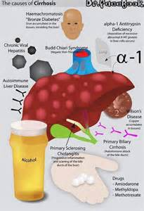 cirrhosis liver picture 2