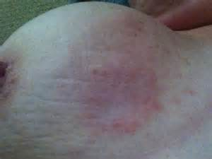 can breast cancer look like stretch marks picture 3