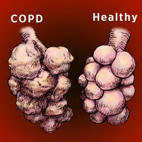 do you lose muscle with copd picture 7