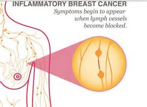 inflammatory breast cancer pictures 2014 picture 3