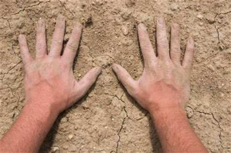 cracked skin on hands picture 14