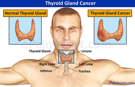 cancer from thyroid treatment xray picture 14