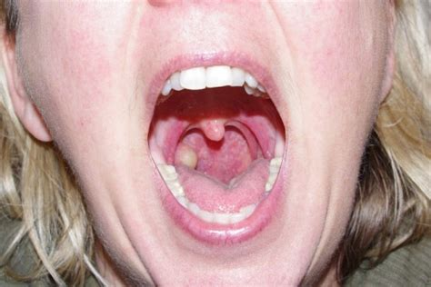 yellow pus showing on lips picture 17