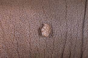 genital warts herpes pictures picture 6