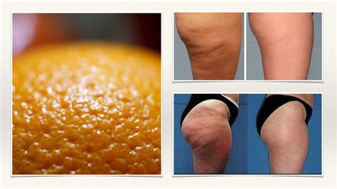 cellulite reduction treatment picture 10