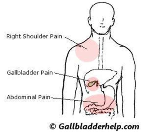 gall bladder symptoms issues picture 7