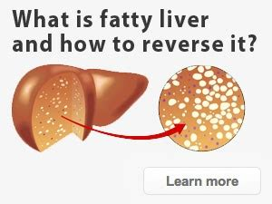 what is fatty liver picture 7
