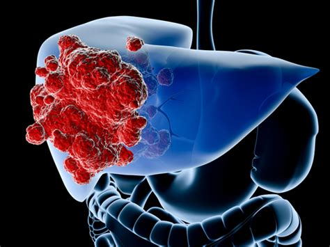anong sintomas liver cancer picture 1