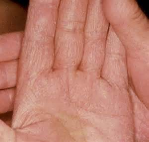fungus on hands picture 1