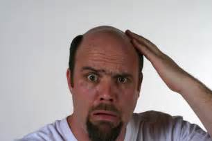 hair loss causes in men picture 1