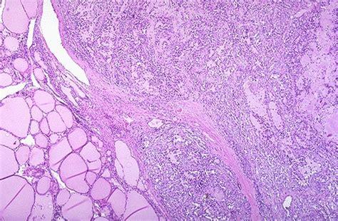 follicular cells in thyroid nodule picture 14