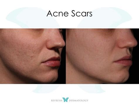 is sculptra good for acne scaring picture 14