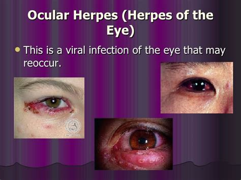 herpes of eye picture 10