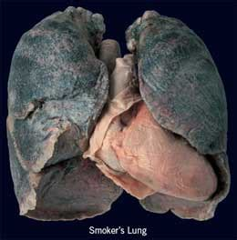 smoke in the lungs picture 17