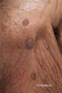 genital wart on underside of penis picture 6