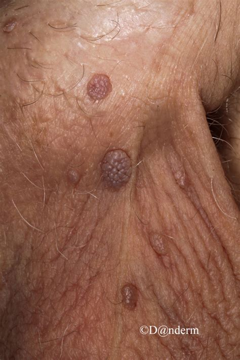 what are genital warts picture 1