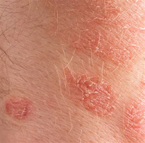 dry skin patches picture 2