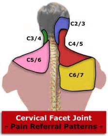 cervical facet joint procedure picture 5