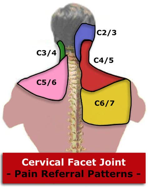 cervical facet joint procedure picture 7