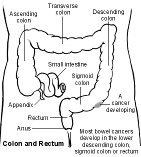Abdominal pain and colon cancer picture 6
