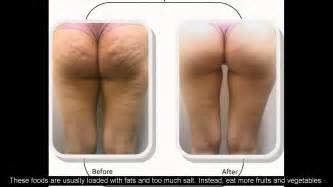 get rid of cellulite now picture 6