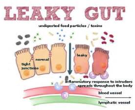 celiac and skin picture 11