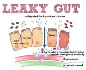 auto immune and gastrointestinal picture 2