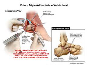 facet joint replacement picture 14