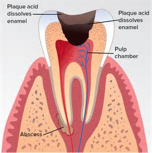abscessed teeth picture 6