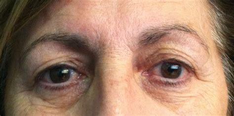 aging technique picture 13