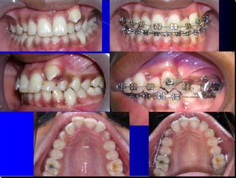 cuspid teeth picture 1