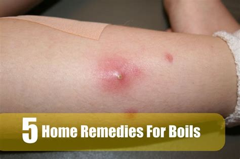 remedy for boils picture 1