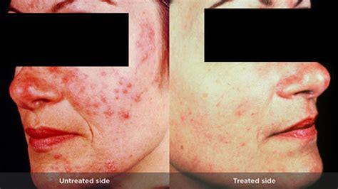 acne symptoms picture 1