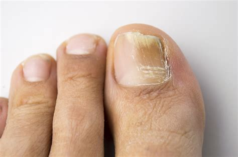 home remedy for nail fungus picture 1