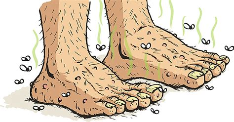 yeast infection remedies picture 14